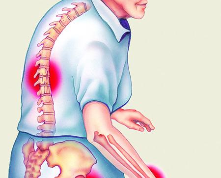 Hablemos sobre osteoporosis